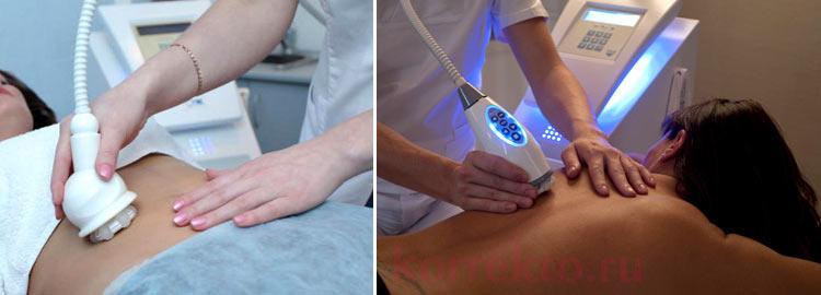 Аппаратная коррекция тела на Le skin v6