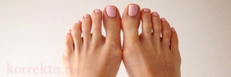 Виды коррекции вросших ногтей ног