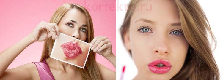 Исправление губ филлерами
