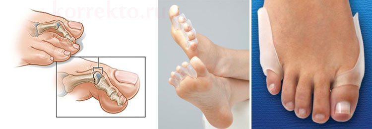 Какие есть ортопедические корректоры пальцев ног