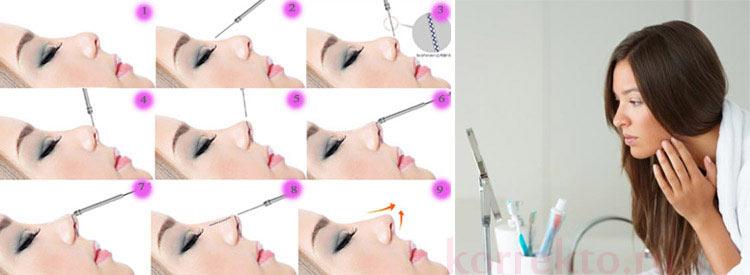 Проведение коррекции носа филлерами