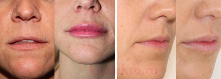 Процесс увеличения губ
