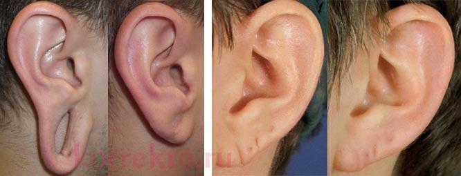 Результаты коррекции мочки уха