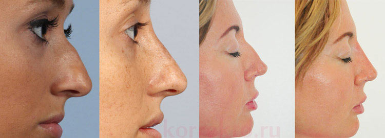 Сравнение пластики носа безоперационно и с операцией