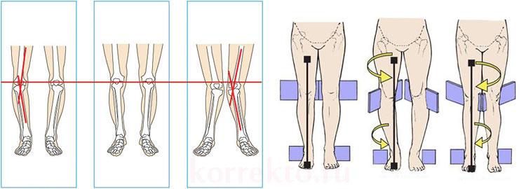 Виды коррекции формы ног