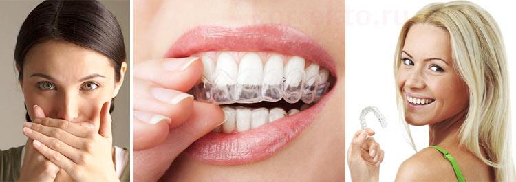 Коррекция зубов капами