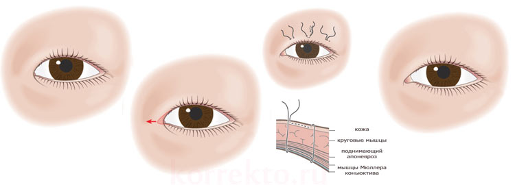 Коррекция разреза глаз