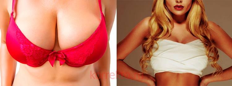 Хирургическое уменьшение груди