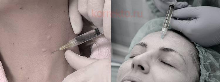 Восстановление упругости кожи на клеточном уровне