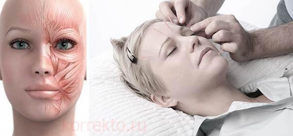 Устранение морщин иглоукалыванием