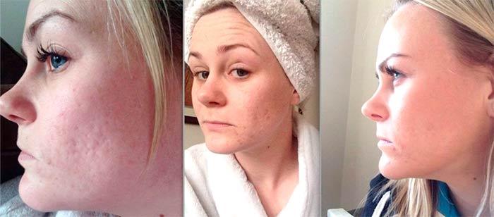 Восстановление структуры кожи