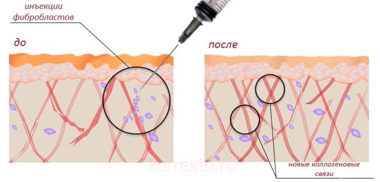 Как действуют фибробласты на кожу