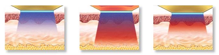 Как работает термолифтинг
