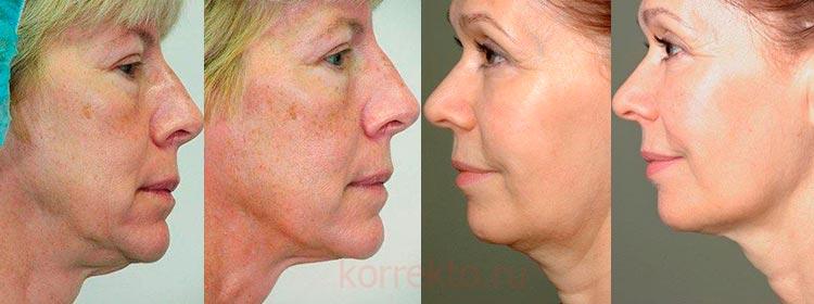 Фото результатов проведенного термолифтинга лица и шеи