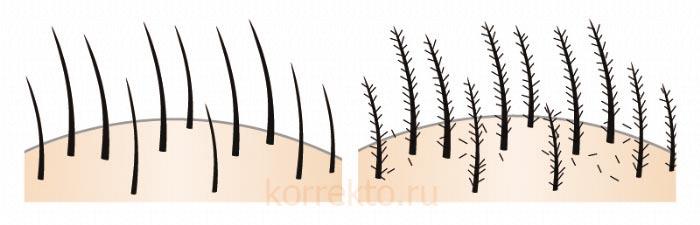 Принцип действия загустителя волос