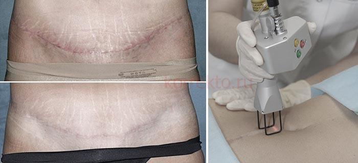 Лазерная шлифовка для удаления шрама после кесарева