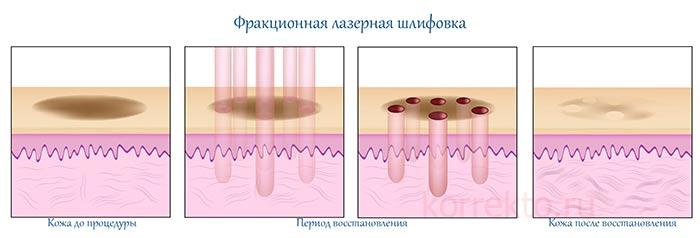Как проходит восстановление кожи после лазерной шлифовки