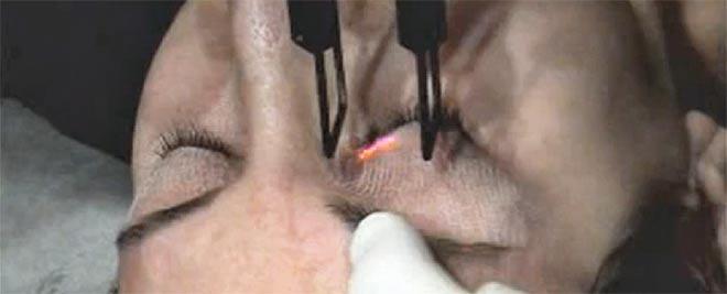 Можно ли убрать морщинки у глаз фракционным лазером