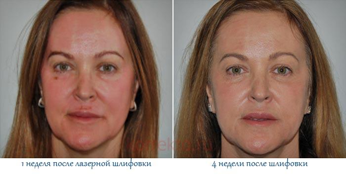 Результат лазерной шлифовки кожи