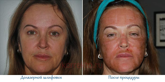 Сколько времени восстанавливается кожа после лазерной шлифовки