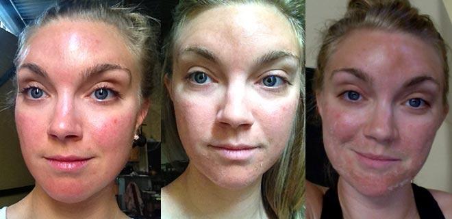 Процесс регенерации кожи после пилинга
