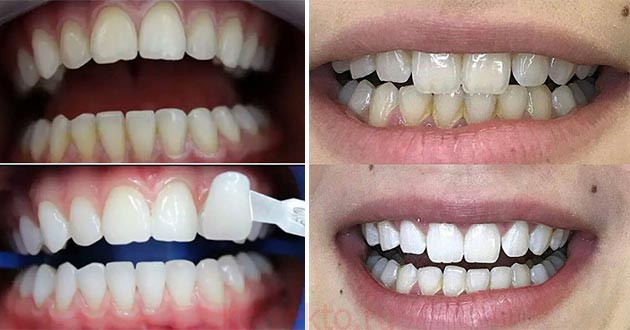 Белые зубы после отбеливания