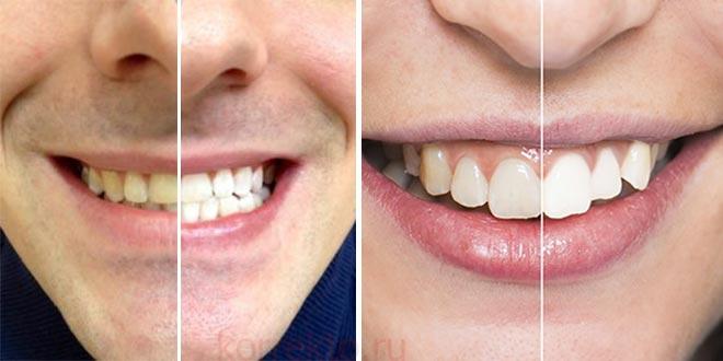 Примеры отбеливания зубов