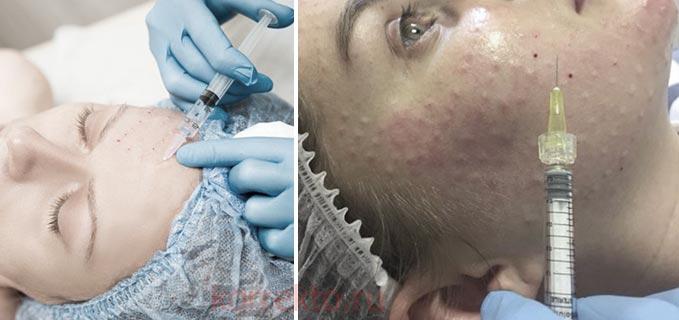 Биоревитализация - ограничения после инъекций красоты