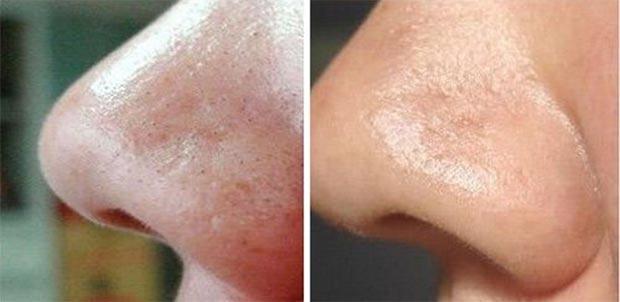 Какие процедуры можно делать после чистки лица