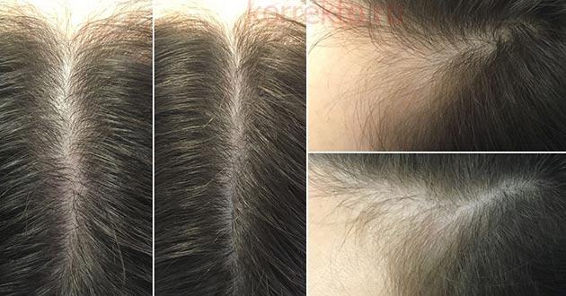 Насколько хорошо растут волосы после мезотерапии