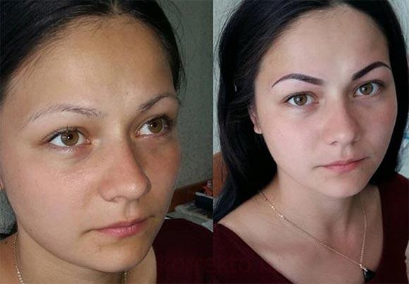 Какой результат карбонового пилинга кожи