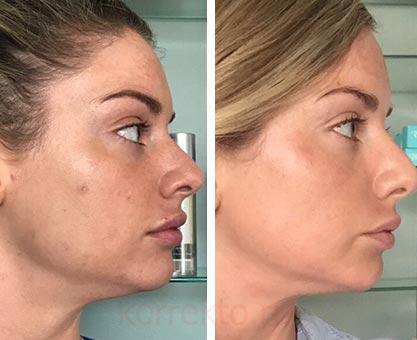 Как выглядит лицо после плазмолифтинга
