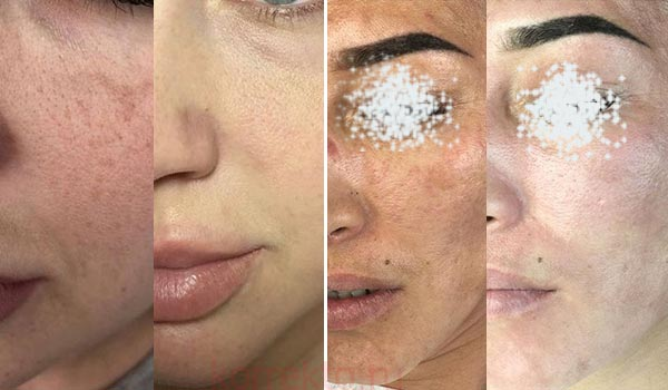 Как проводится коррекция кожи BB glow