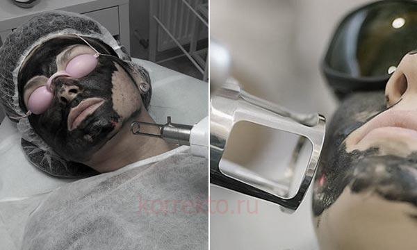 Как ухаживать за кожей после карбонового пилинга