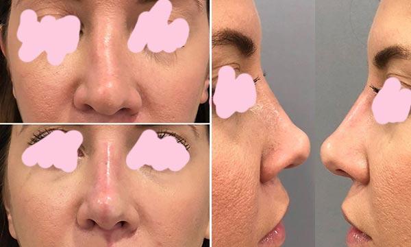 После исправления носа филлером