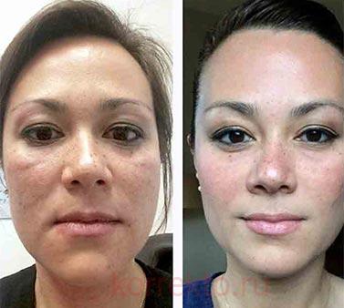 Результаты после плазмолифтинга