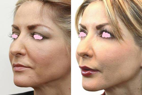 Восстановление после липофилинга лица