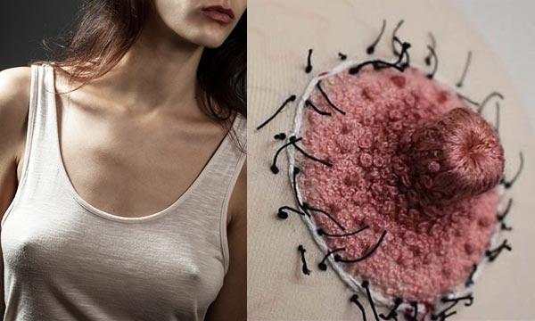 Могут ли быть осложнения после пластики сосков и ареол