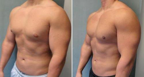 Операция на уменьшение груди мужчин