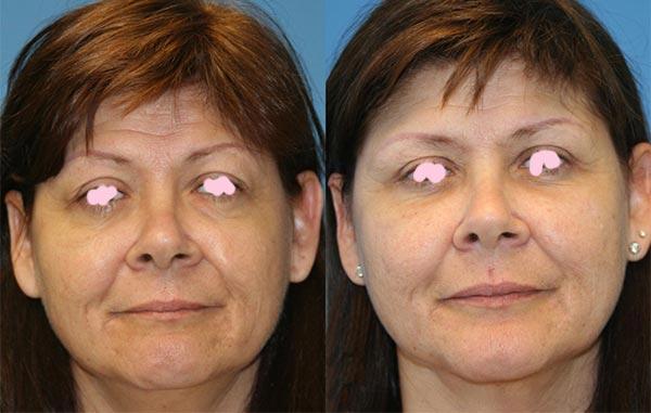Отзывы после липофилинга лица