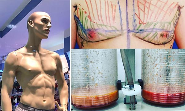 Уменьшение груди у мужчин