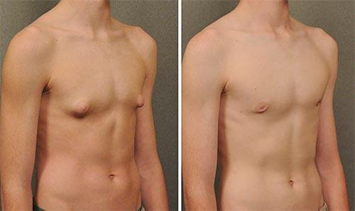 Уменьшить выпирающие мужские соски