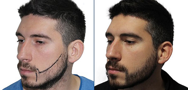 Как ухаживать за бородой после пересадки волос