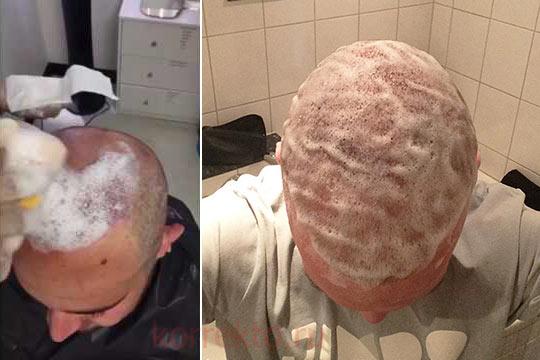 Как мыть голову после пересадки волос
