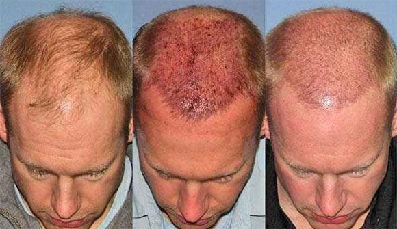 После трансплантации волос