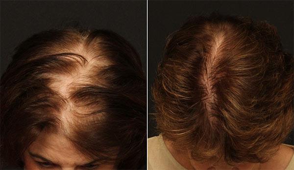 Реабилитация после трансплантации волос