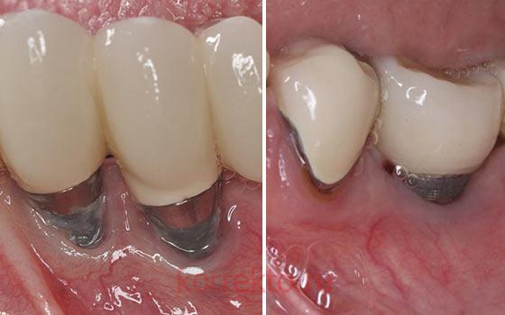 Нужно ли ходить на контрольные осмотры после имплантации зубов