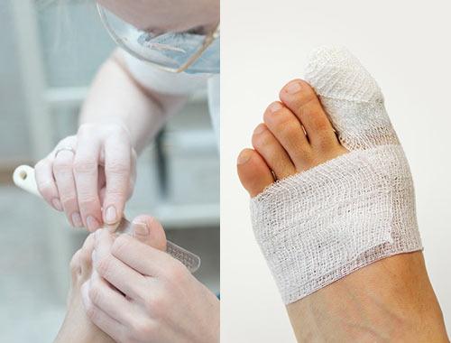 Чем мазать ноготь после удаления ногтя