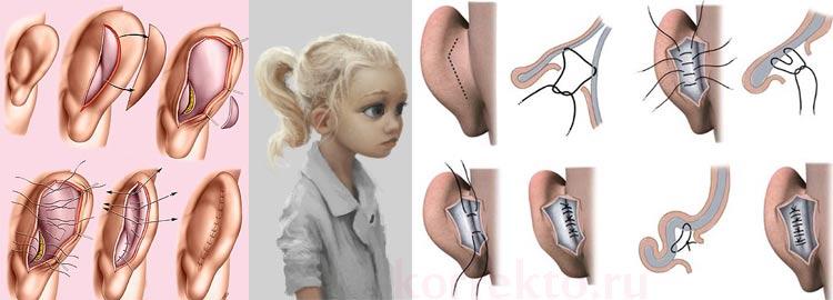 Виды коррекции ушей