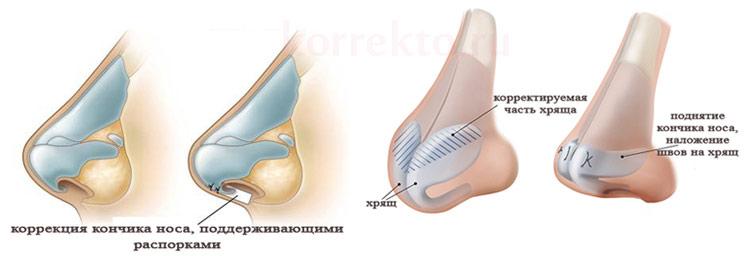 Коррекция кончика носа
